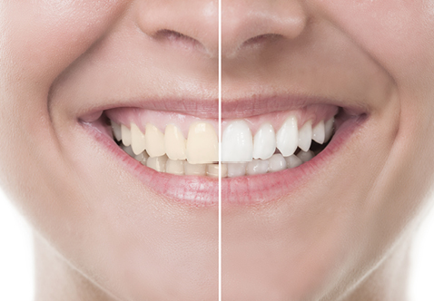 Sensational Smiles Dental Tooth Whitening
