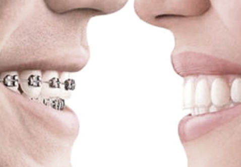 Sensational Smiles Dental Braces