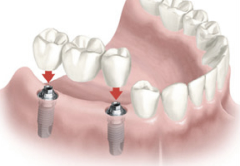 Sensational Smiles Dental Implants