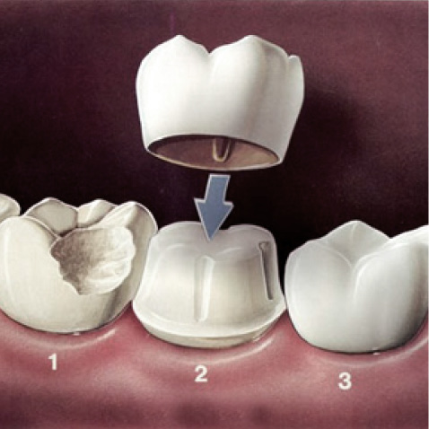 Sensational Smiles Dental Crowns