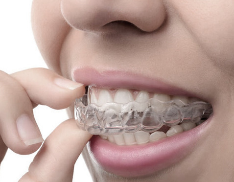 Sensational Smiles Dental Invisalign