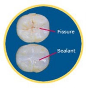 Fissures & Sealants