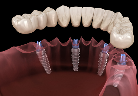 teeth repair
